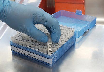 """Secretaria Municipal de Saúde atualiza boletim sobre coronavírus e """"perde"""" 33 casos"""